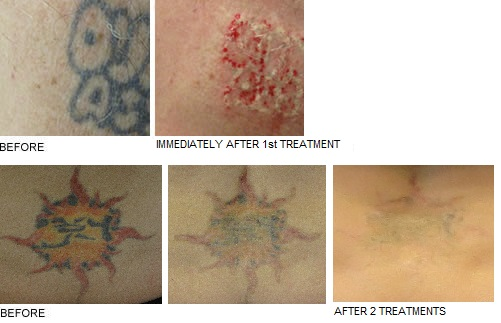 before and after tattoo removal